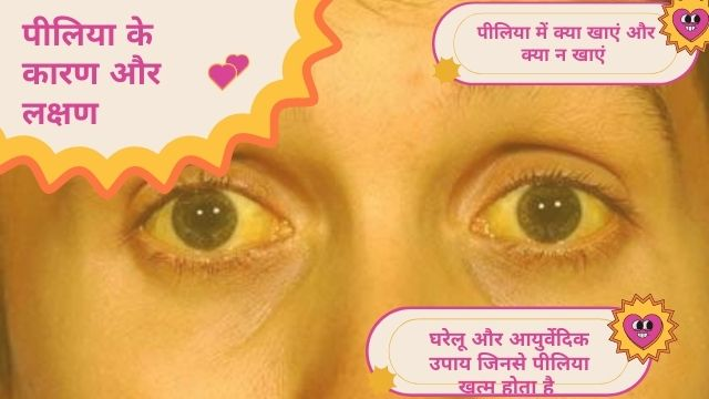 Jaundice Treatment at Home Hindi