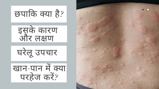 Home Remedies for Chapaki Allergy in Hindi